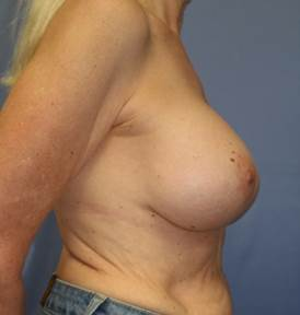 Breast Augmentation, 425cc silicone implants after 1335859