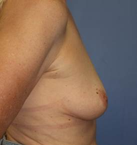 Breast Augmentation, 425cc silicone implants before 1335859
