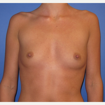 25-34 year old woman treated with Breast Augmentation (R. 295cc, L. 275cc) before 3544316