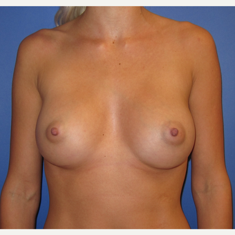 25-34 year old woman treated with Breast Augmentation (R. 295cc, L. 275cc) after 3544316