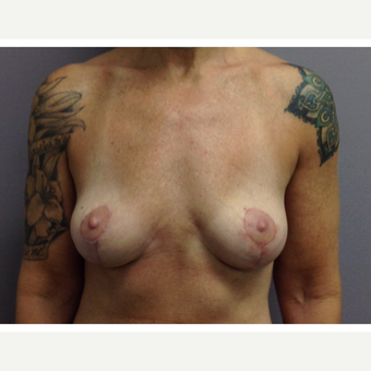 35-44 year old woman treated with Breast Implant Removal after 3523806