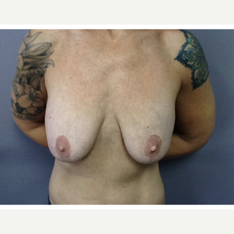 35-44 year old woman treated with Breast Implant Removal before 3523806