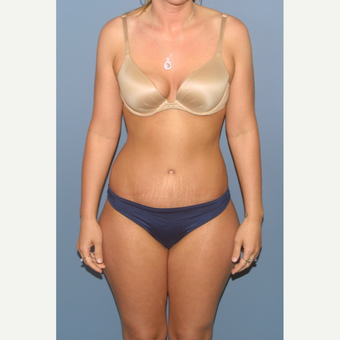 25-34 year old woman treated with Tummy Tuck after 3563557
