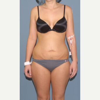 25-34 year old woman treated with Tummy Tuck before 3563557