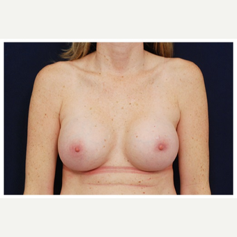 35-44 year old woman treated with Breast Implants before 3383473