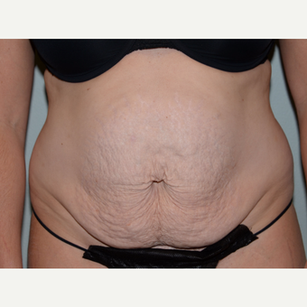 36 year old woman treated with Tummy Tuck before 3453221