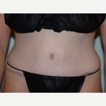 36 year old woman treated with Tummy Tuck after 3453221