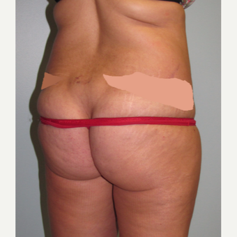 45-54 year old woman treated with Liposuction before 3009626