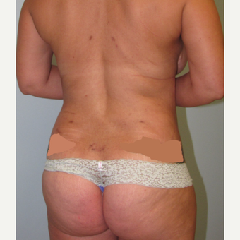 45-54 year old woman treated with Liposuction after 3009626