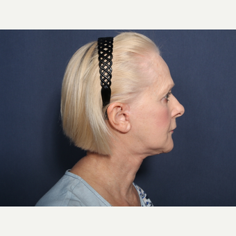 55-64 year old woman treated with Facelift (view 2 of 2) after 3259219