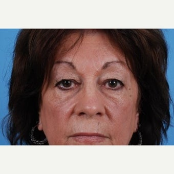 55-64 year old woman treated for Eye Bags