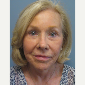 65-74 year old woman treated with Facelift after 3538867
