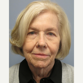 65-74 year old woman treated with Facelift before 3538867