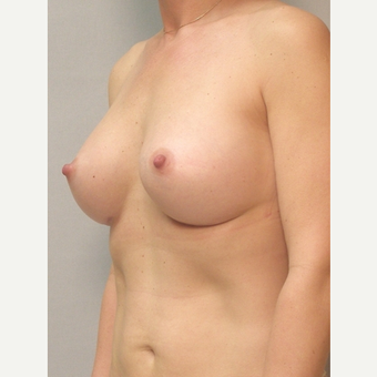 Breast Implants after 3241580