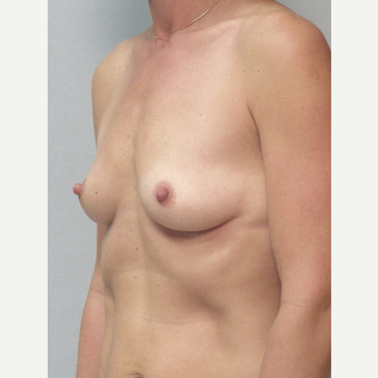 Breast Implants before 3241580