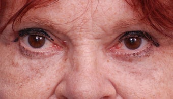 Upper and lower blepharoplasty after 1445648