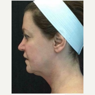 55-64 year old woman treated with Ultherapy before 3179971