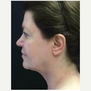 55-64 year old woman treated with Ultherapy after 3179971