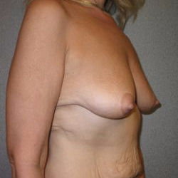 35-44 year old woman treated with Breast Lift with Implants before 3122383