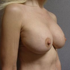 35-44 year old woman treated with Breast Lift with Implants after 3122383