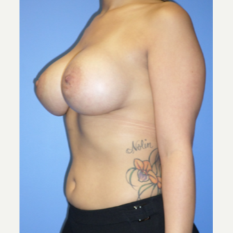 25-34 year old woman treated with Breast Implants after 3370297