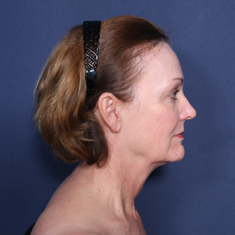 55-64 year old woman treated with Neck Lift (view 2 of 2) before 3179945