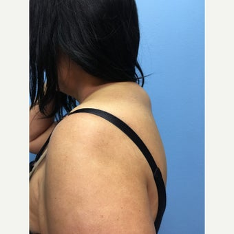 50 year-old woman treated with Liposuction of the upper back/neck before 3494948