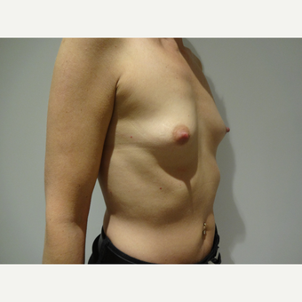 25-34 year old woman treated with Breast Implants before 3765550