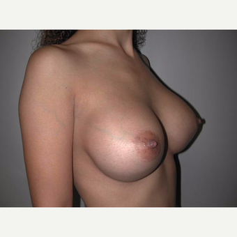 25-34 year old woman treated with Breast Implants after 3765550