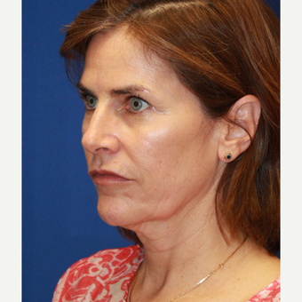 56 year old woman treated with CO2 Laser, face & neck lift, fat transfer and upper eyelids before 3135215