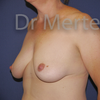 35-44 year old woman treated with Breast Lift with Implants before 3591954