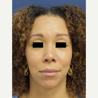 25-34 year old woman treated with Rhinoplasty after 3496709