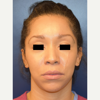 25-34 year old woman treated with Rhinoplasty before 3496709