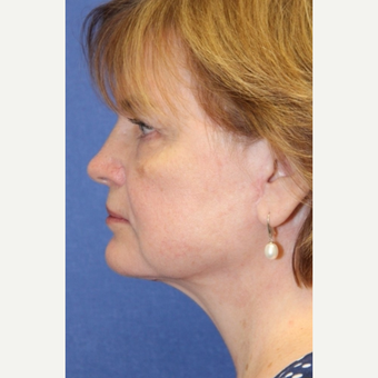 63 year old woman with a Neck Lift after 3181413