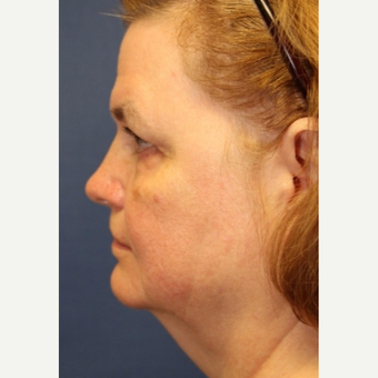 63 year old woman with a Neck Lift before 3181413