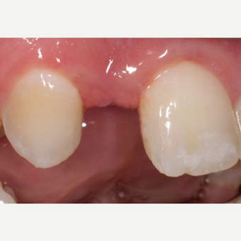 35-44 year old man treated with Dental Implants before 3629726