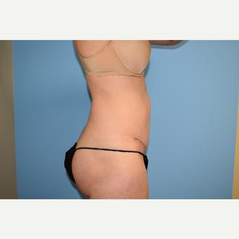 Diastasis Recti Repair When Do You Need Surgery Realself