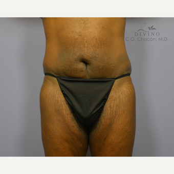 45-54 year old man treated with Panniculectomy after 3415802