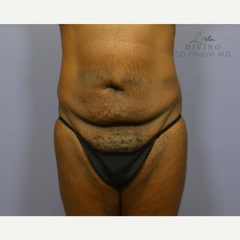 45-54 year old man treated with Panniculectomy before 3415802