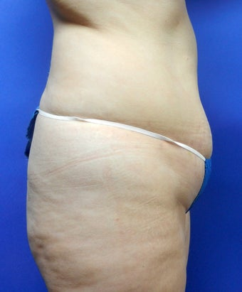 38 year old with lack of gluteal volume before 917953