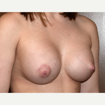 25-34 year old woman treated with Breast Implants after 3022808
