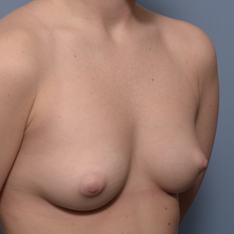 25-34 year old woman treated with Breast Implants before 3022808