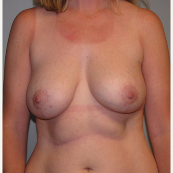 35-44 year old woman treated with Breast Implant Revision after 3136602