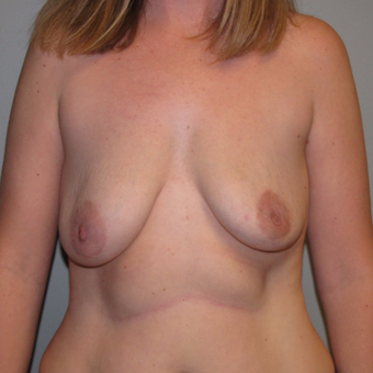 35-44 year old woman treated with Breast Implant Revision before 3136602