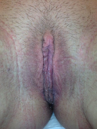 21yo Female, Labiaplasty