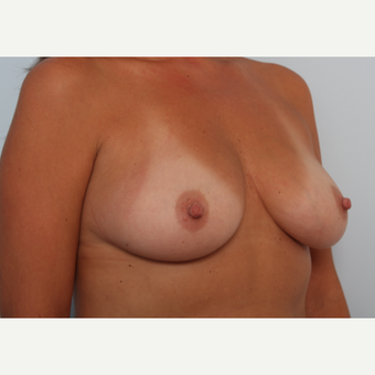 Breast Augmentation before 3459999