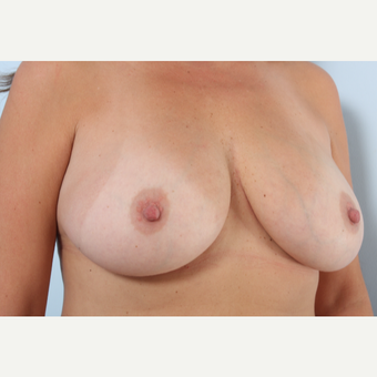 Breast Augmentation after 3459999