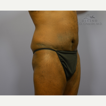45-54 year old man treated with Panniculectomy after 3421675