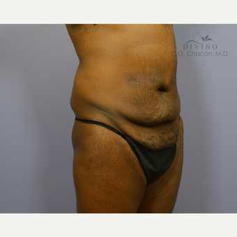 45-54 year old man treated with Panniculectomy before 3421675