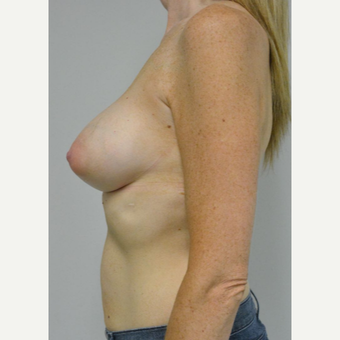 35-44 year old woman treated with Breast Implants after 3304591
